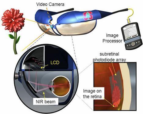 Retinal prosthesis design