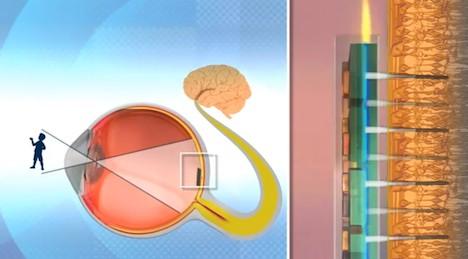 Nano retina implant